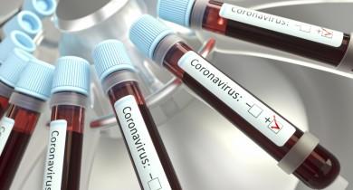 Caxias do Sul coleta plasma de pacientes recuperados da Covid-19